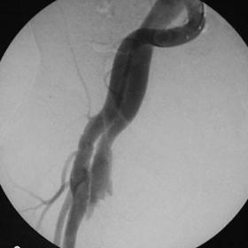 Angiography of the superficial femoral artery