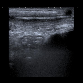 Ultrasound of the abdominal wall