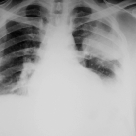 Initial PA-chest radiograph