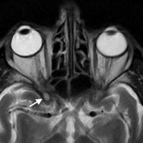 T2-weighted cranial MRI