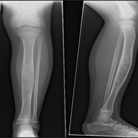 Plain radiographs left leg