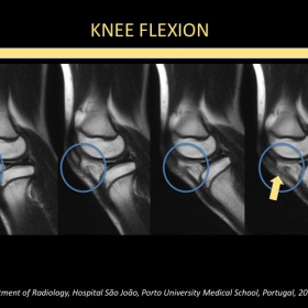 Knee flexion - Parasagittal T1 weighted MRI.
