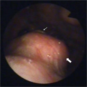 Fiberoptic endoscopic evaluation
