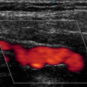 Power Doppler imaging of FMD