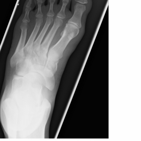 Plain radiograph of left foot