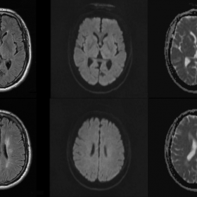 MRI Axial FLAIR sequence and diffusion weighted imaging
