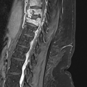 MRI Thoracolumbar spine: Post Contrast