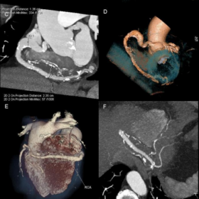 Cardiac computed tomographic examination – VRT and MIP reconstructions