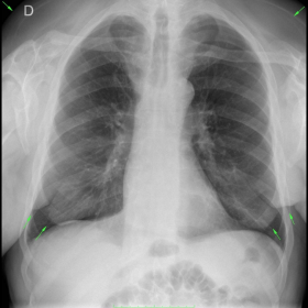 AP chest X-ray
