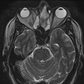 Axial T2 Weighted MR images