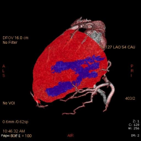 Semiquantitative evaluation of myocardial perfusion