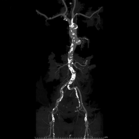 Panoramic view of the thoraco-abdominal aorta and its branches