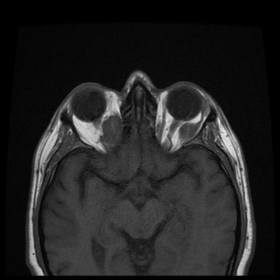 MR T1-weighted  images