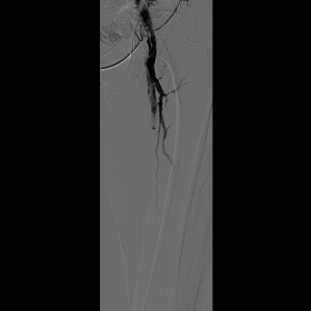 First angiography: occlusion of upper and middle SFA