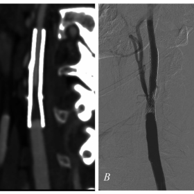 Preprocedural CT and Fluoroscopic angiography