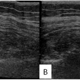 Long axis extended field of view Ultrasonography