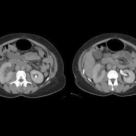 Axial CT images