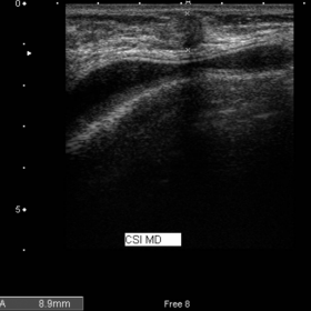 US of palpable lump in the right breast