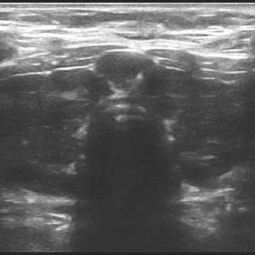 Ultrasonography of thyroid with high frequency linear transducer (5-14MHz).