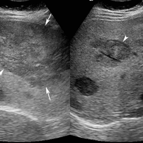 Grayscale ultrasound images (curved array 5.0-2.0 MHz transducer)