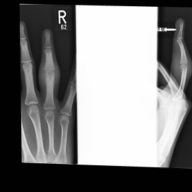 Initial finger X-ray