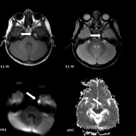 Brain MRI [3-year-old]