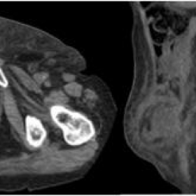 Axial and sagital non-enhanced CT of the inguinal mass