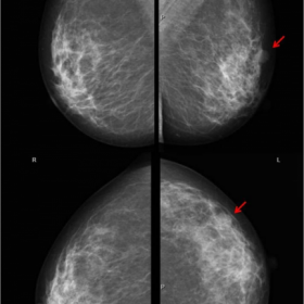 Bilateral mammogram with heterogeneously dense parenchyma (ACR – c)