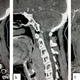 Retropharyngeal desmoid tumour: CT findings