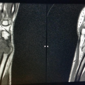 Magnetic Resonance Imaging of left wrist