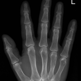 Radiograph of the hand, PA