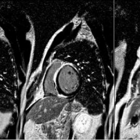 Cardiac MRI T1 post contrast myocardial delayed enhancement images