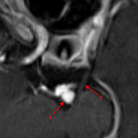 3D T1-weighted vibe image after injection of gadolinium