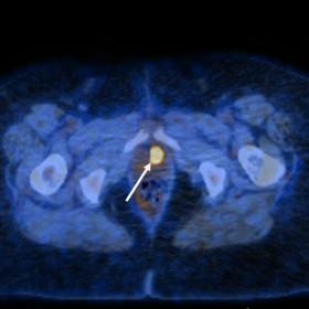 Axial fused PET/CT image