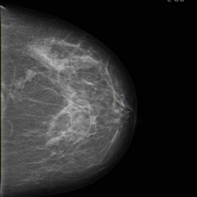 Screening Mammogram