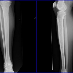 Film x-ray right leg AP/Lateral