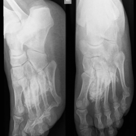 X-Ray oblique, face and lateral