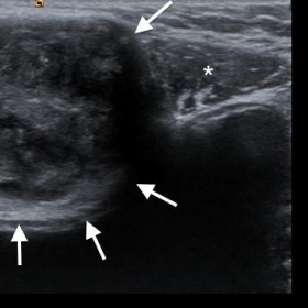 The sonography image of the mass