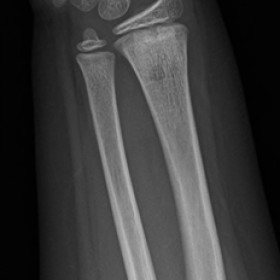 Conventional radiograph of the right wrist
