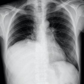 Chest radiograph (CR)