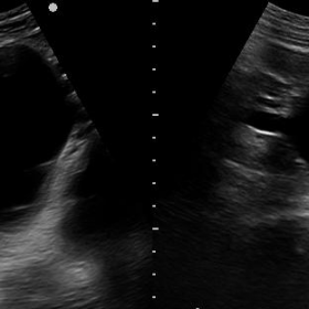Ultrasound findings