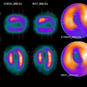 Stress and rest myocardial perfusion imaging