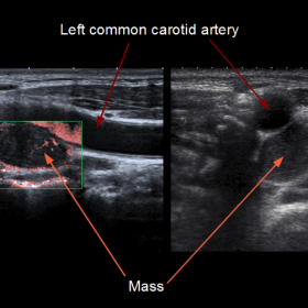 Doppler colour and B-mode ultrasound scan