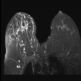 Fat -uppressed T1W post-contrast image