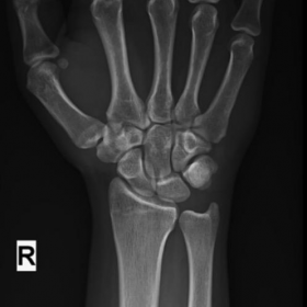 X-Ray of right wrist AP and lateral view