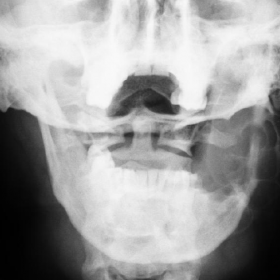 Radiography of the mandible.