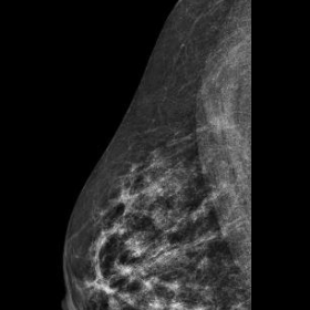 2D Mammogram (CC view) right breast