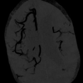 Brain CT angiography