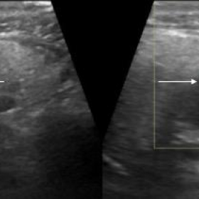 B mode ultrasound of right parotid gland