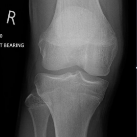 Radiographs of the right knee